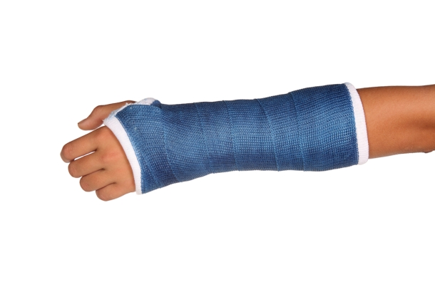 ss_18694507_broken_arm_cast